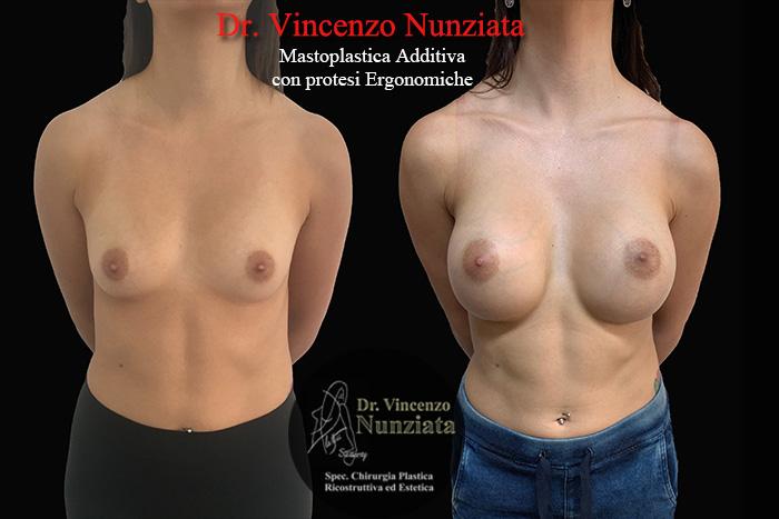 Dr Vincenzo Nunziata, Cosenza