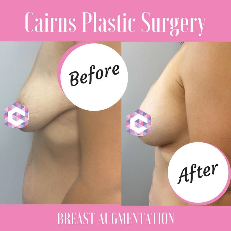 Cairns Plastic Surgery, Cairns