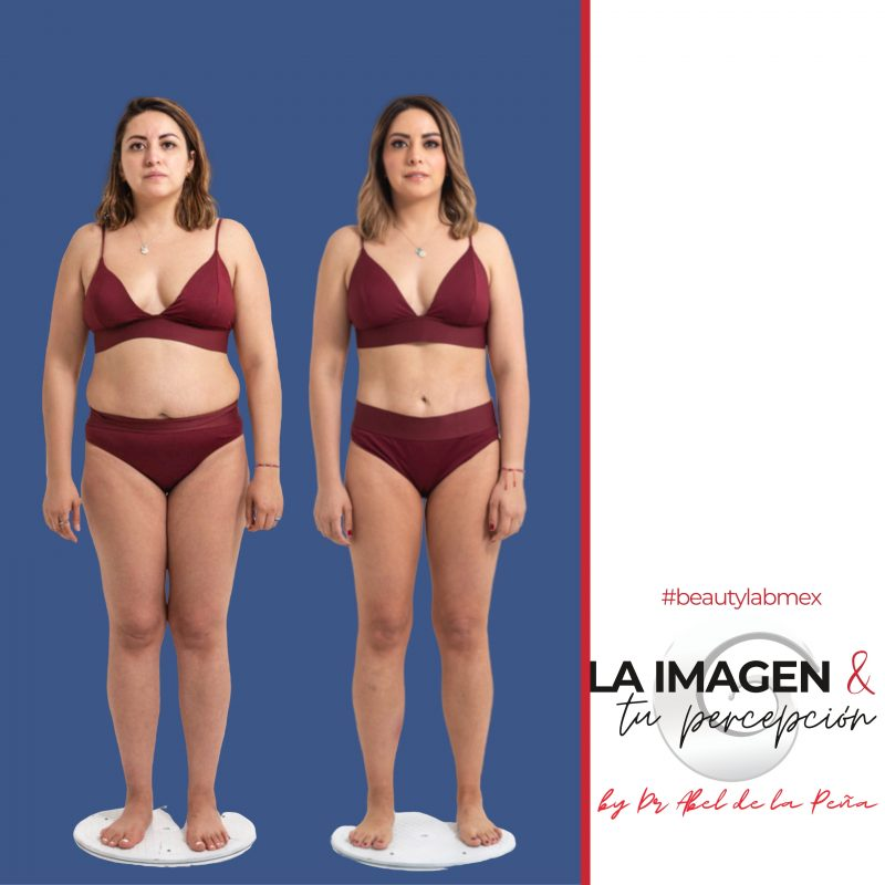 Instituto de Cirugia Plastica&Medical spa, Hospital Angeles Interlomas Huixquilucan