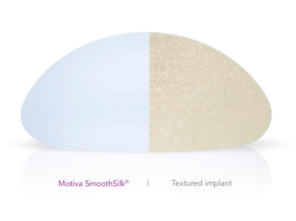 implant comparison with smoothsilk