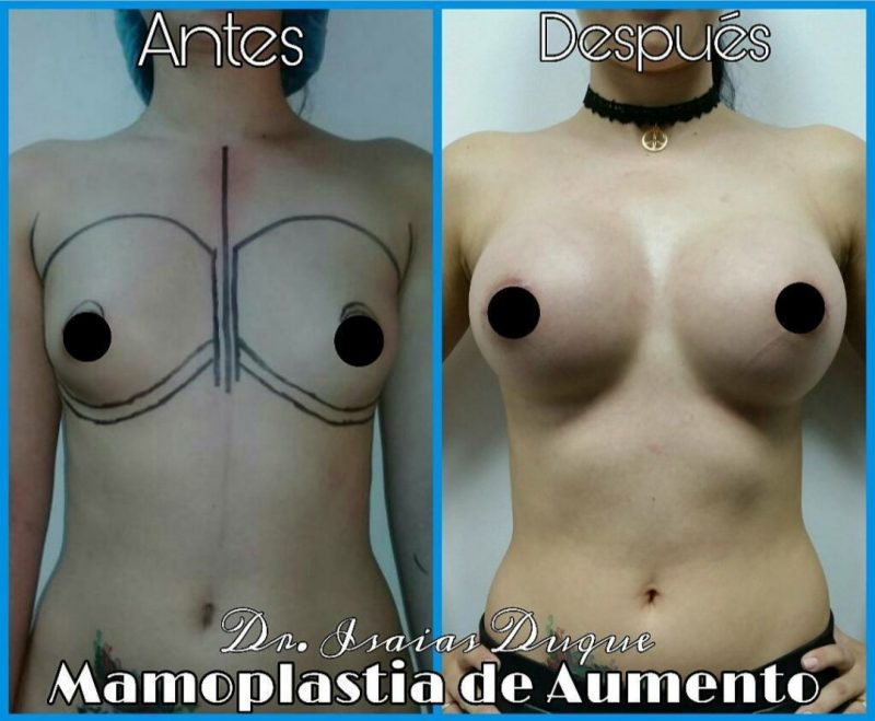 Dr. Isaias Duque – Cirujano Plástico y Reconstructivo, San Cristobal